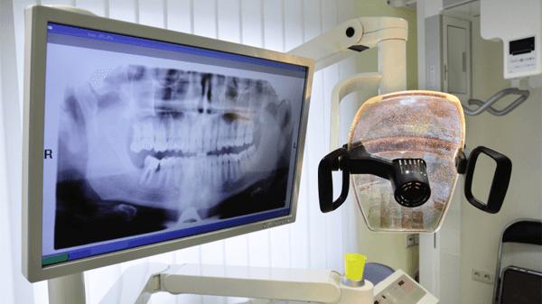 (Deutsch) Zahnimplantate